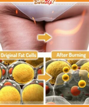 BurnUp! Ultimate Cellulite Heating Spray
